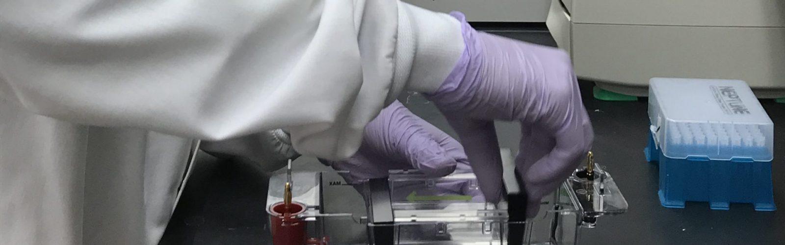Action image of preparation work to cast agarose gel